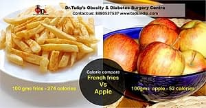 TODS_Weight Loss Surgery