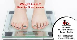 TODS_Weight Loss Surgery in Bangalore